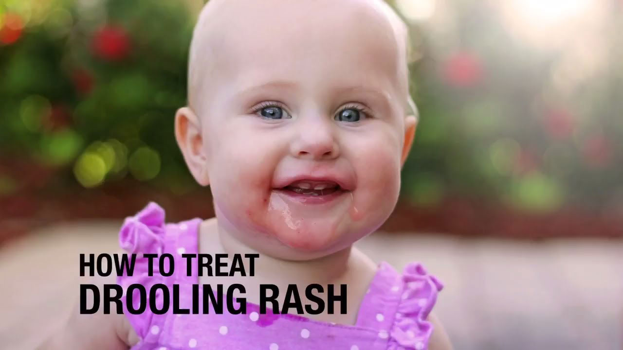 How to treat drooling rash?